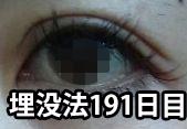 二重瞼 整形
