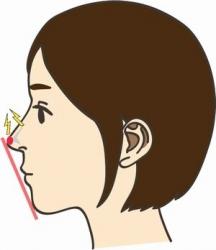 鼻 プロテーゼ種類