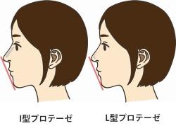 鼻の整形 値段