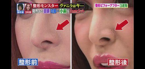 鼻 小さく 整形