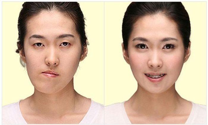 韓国女性の整形前後画像