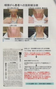 喉頭がん患者への放射線治療