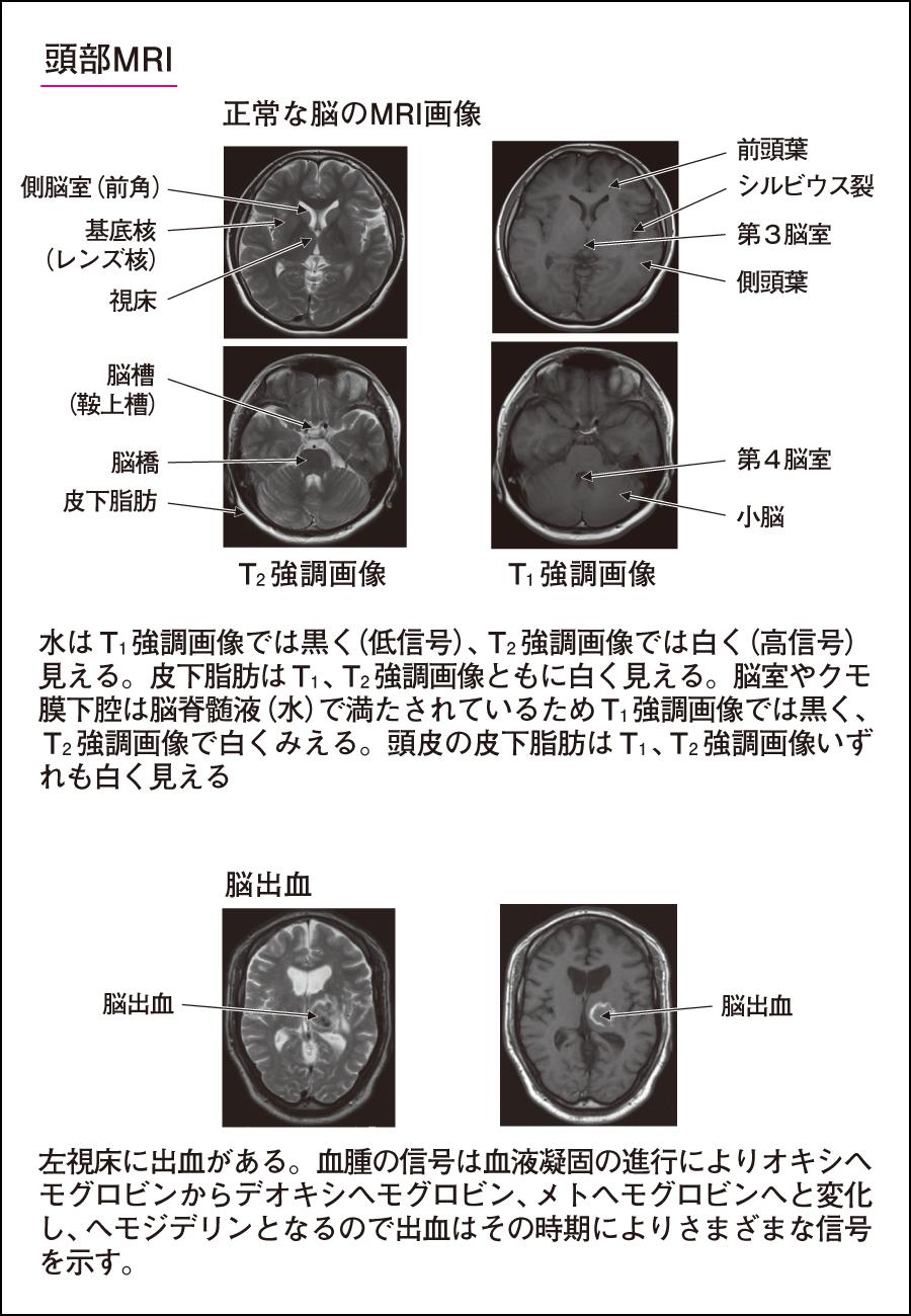 03-05-i1.png