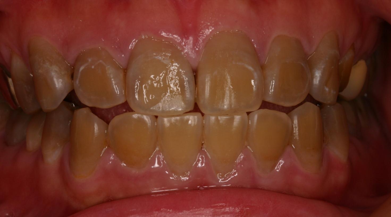 TC teeth