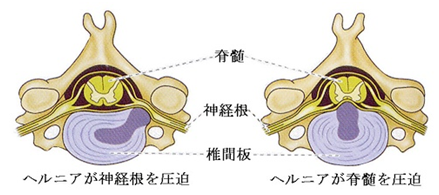 neck hernia
