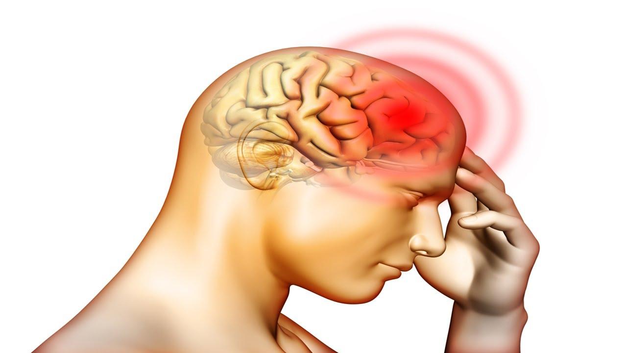 cerebral hemo