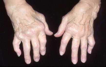 351455_Arthritis-1.jpg