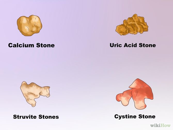 670px-Dissolve-Kidney-Stones-Step-3-Version-2.jpg
