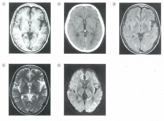 MRI-546x404.jpg