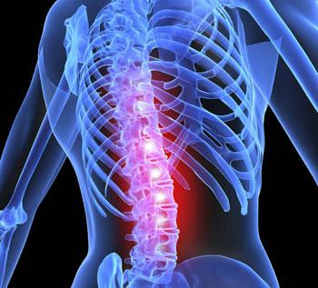 avoid-low-back-surgery.jpg