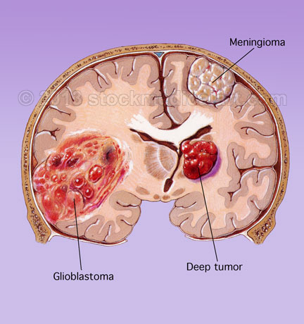 brain-tumor.jpg
