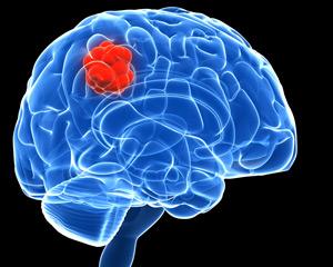 brain-tumour.jpg