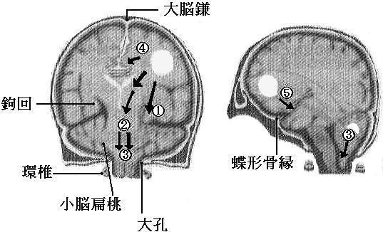 cerebral26.jpg