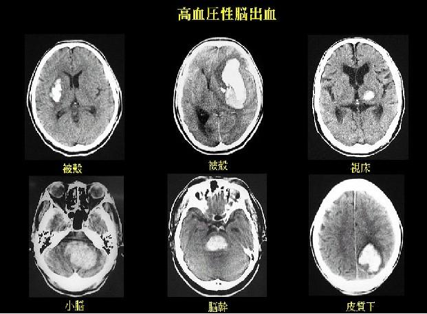 cerebral34.jpg