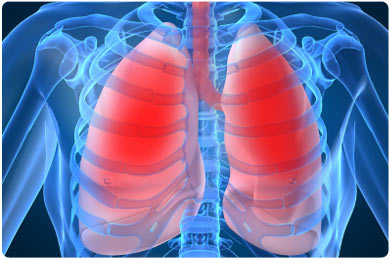 chronic-obstructive-pulmonary-disease.jpg