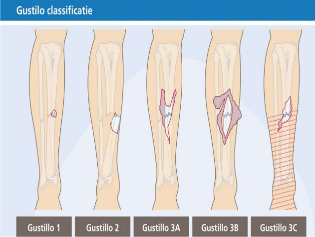 classification-of-fractures-compound-fracture-managment-6-638.jpg