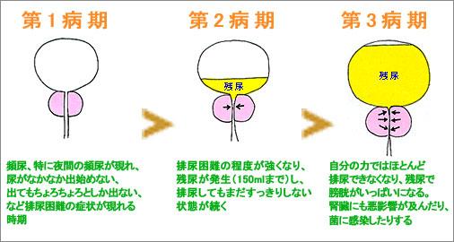 column_graph2.jpg