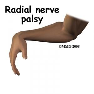 complic_radial_nerve_palsy.jpg