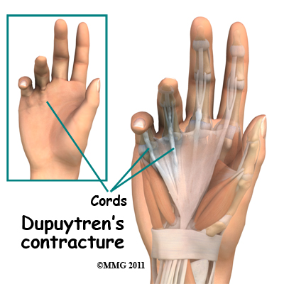 dupuytrens_contracture_cord.jpg