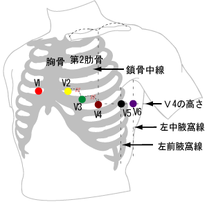 ecg_style_chest_position.png