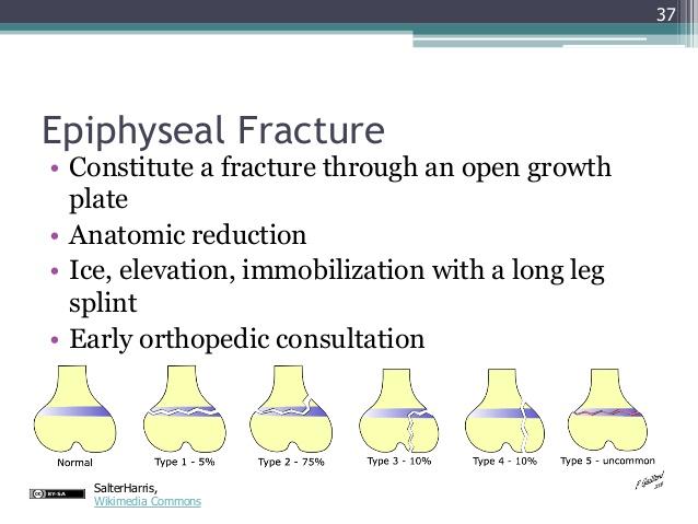 gemc-lower-extremity-injuries-resident-training-37-638.jpg