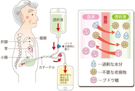hukumaku-toseki-zu01.jpg