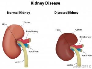 labeled-illustration-of-kidney-disease.jpg