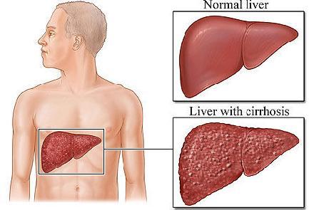 liver_disease.jpg