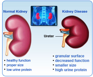 normal_kidney_vs_disease.jpg