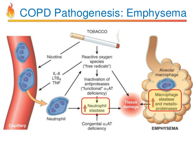 pathology-of-copd-25-638.jpg