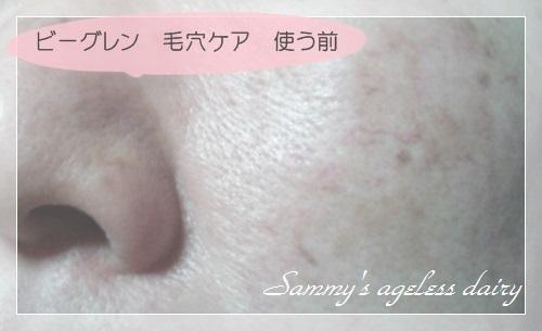 ビーグレン 毛穴ケア 使う前の肌 1