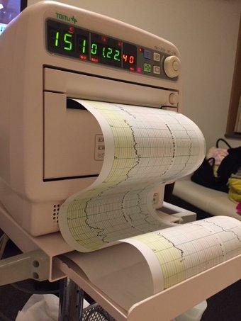 モニターで陣痛の波と赤ちゃんの心拍を記録