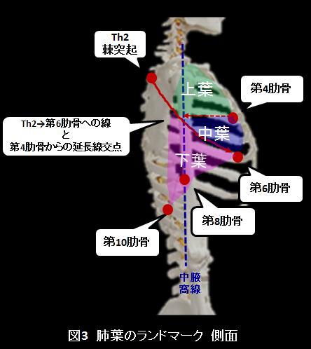 肺葉ランドマーク側面
