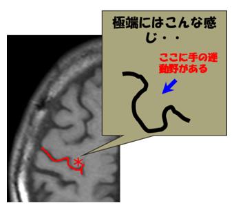 中心溝の同定6