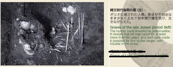 2016-1-21北海道入江貝塚の人骨(ポリオだった)