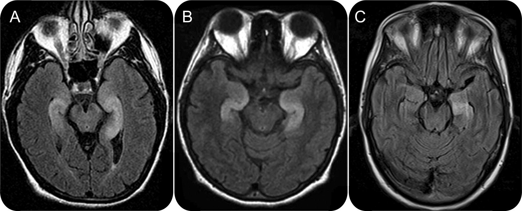 NeurologyOrg-LimbicEncephalitis-F3large.jpg