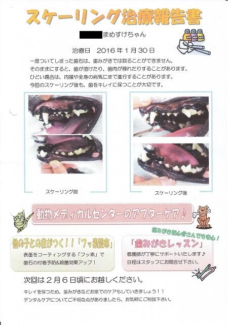 2016歯石除去7